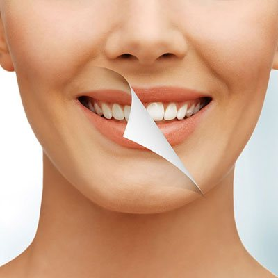 cosmetic dentistry at dental clinic in ahmedabad - Vyom