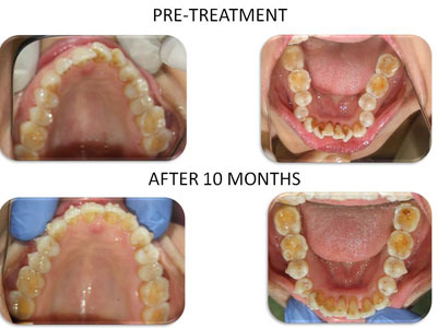 case study of how invisalign helps in straightening the teeth in 10 months. treatment available at vyom - the best invisalign treatment clinic in ahmedabad