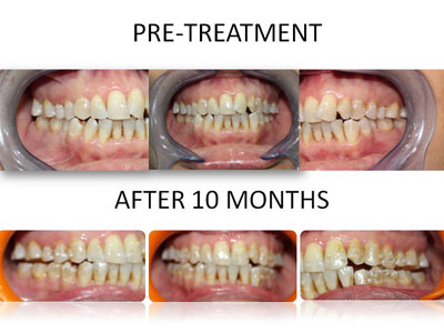 example showing how invisalign helps transforming your look by aligning and shaping your teeth in just 10 months without any needs of wires & rubber bands. available at vyom dental care - the best invisalign treatment provider in ahmedabad