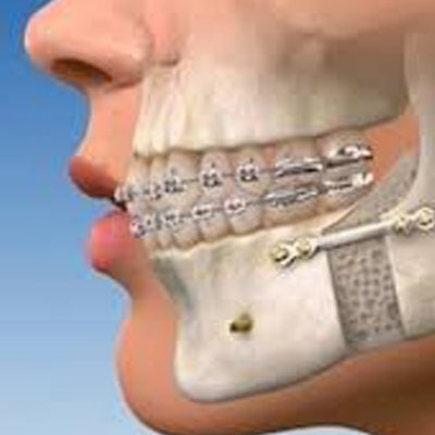 orthognathic surgery treatment at Vyom Dental Care Ahmedabad