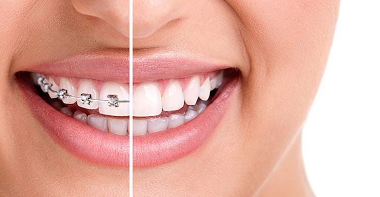 image highlighting the difference between traditional braces and invisalign clear braces.