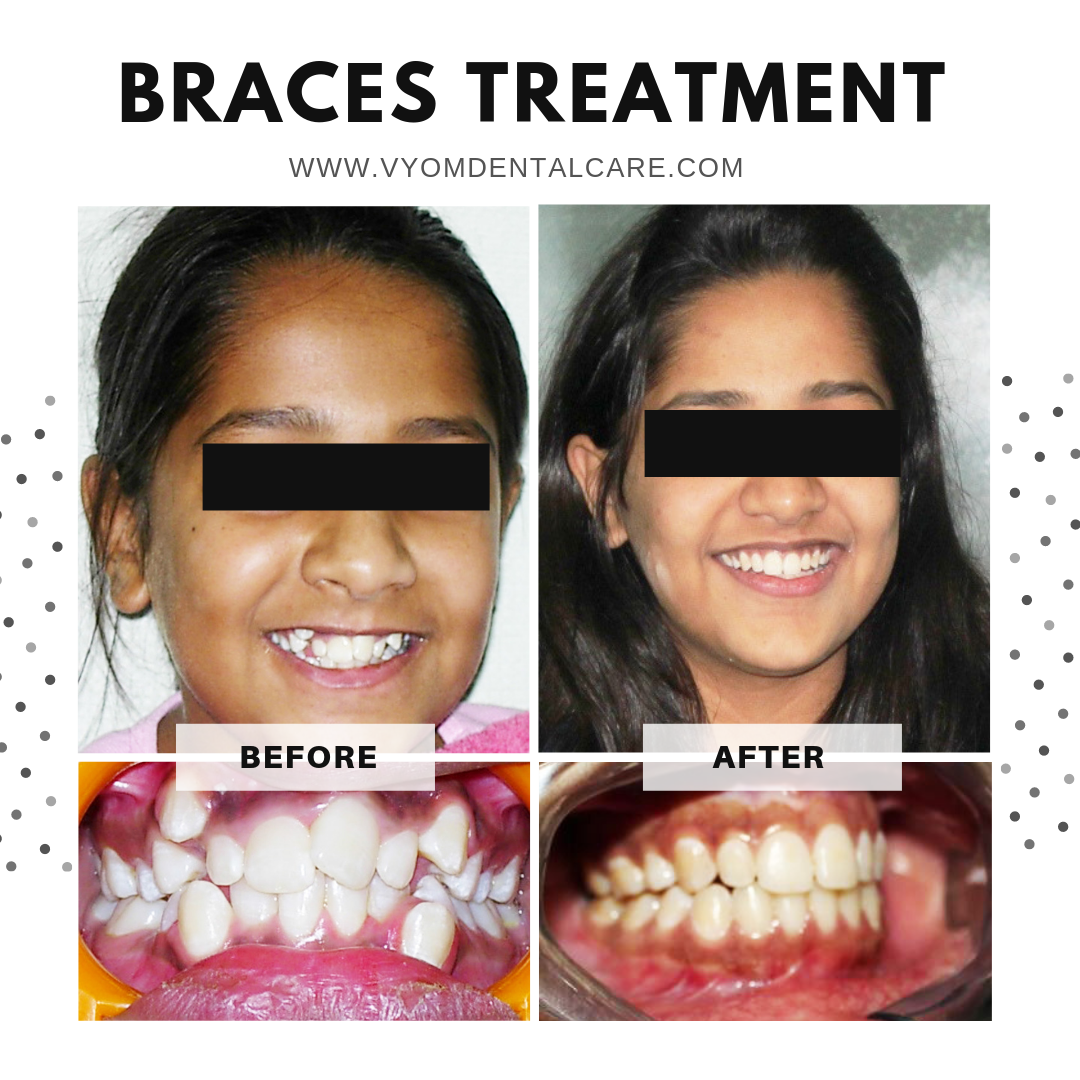 Image of a patient who has successfully carried out dental braces treatment at Vyom - the best dental clinic in ahmedabad to achieve her dream smile.