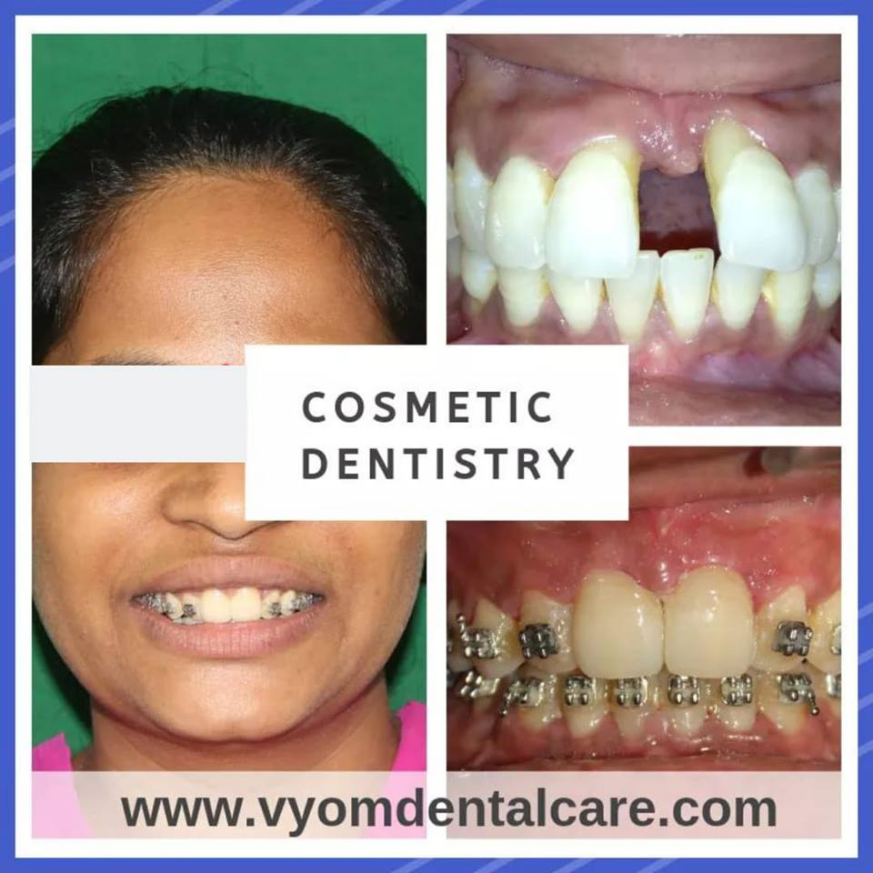 Image of a patient displaying how cosmetic dentistry has exponentially transformed the shape of the teeth achieving her desired look and smile at Vyom - the best dental clinic in ahmedabad.