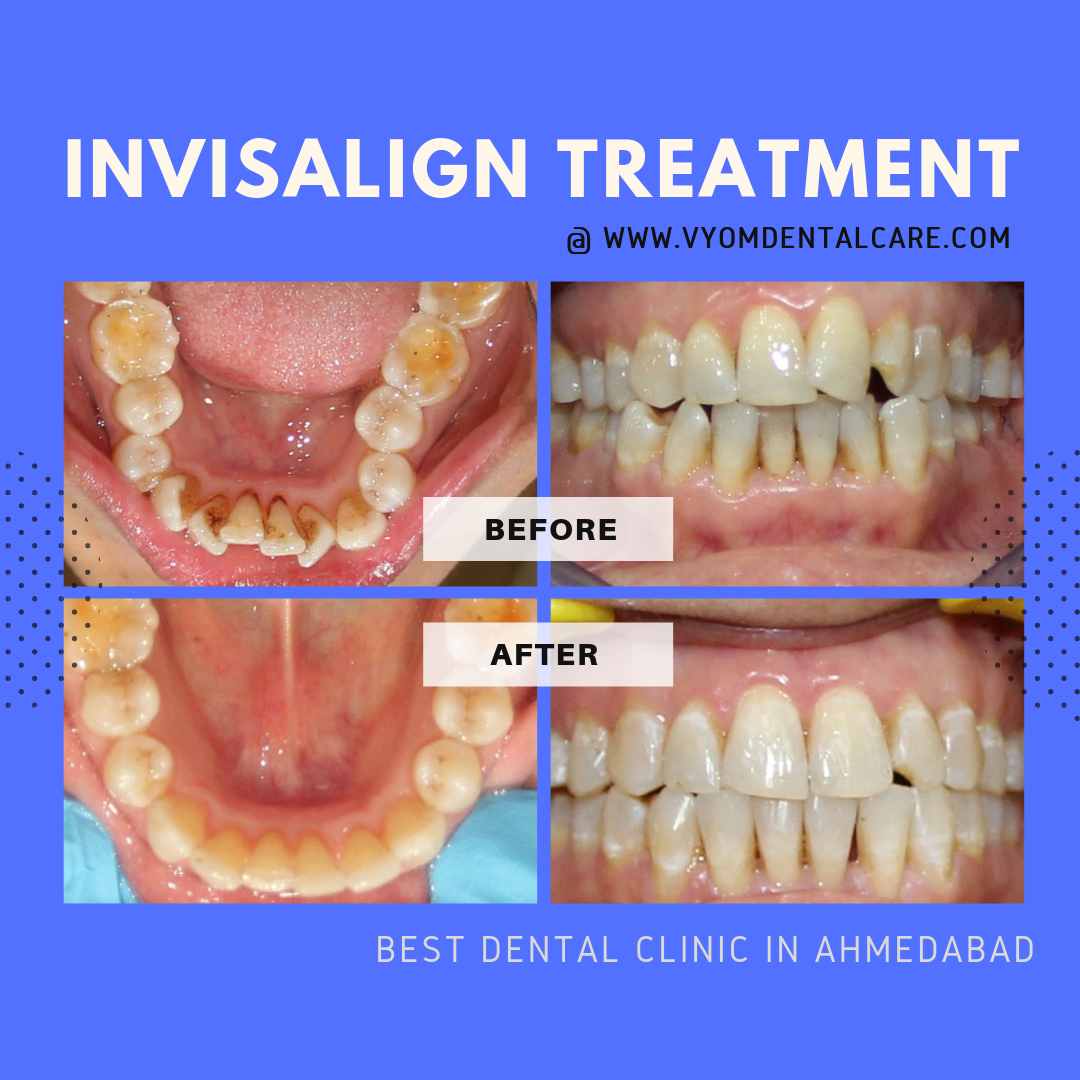 Before and after Image showing how invisalign treatment at Vyom - the best dental clinic in ahmedabad can transform shape of teeth to provide your dream smile.