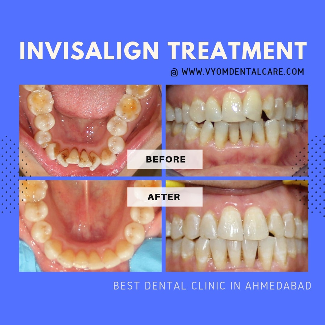 invisalign-treatment-ahmedabad-case-study