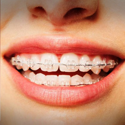 example of a patient wearing ceramic braces. treatment available at vyom dental care ahmedabad.