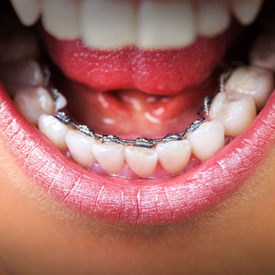 example of a patient wearing lingual braces. treatment is available at vyom dental care ahmedabad.