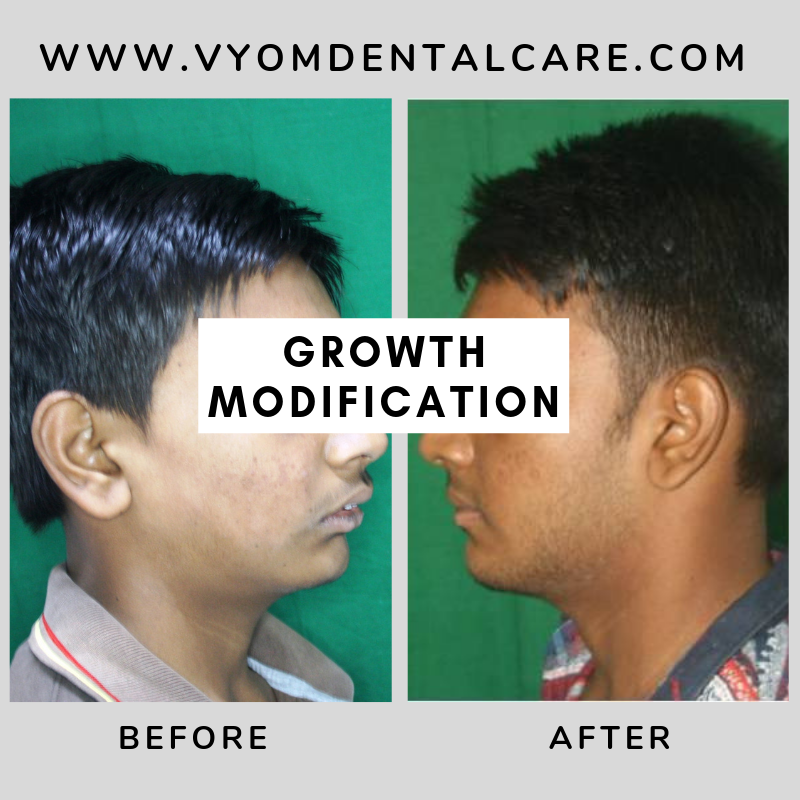 Case study of a patient who has successfully carried out growth modification procdure at Vyom - the best dental clinic in ahmedabad.