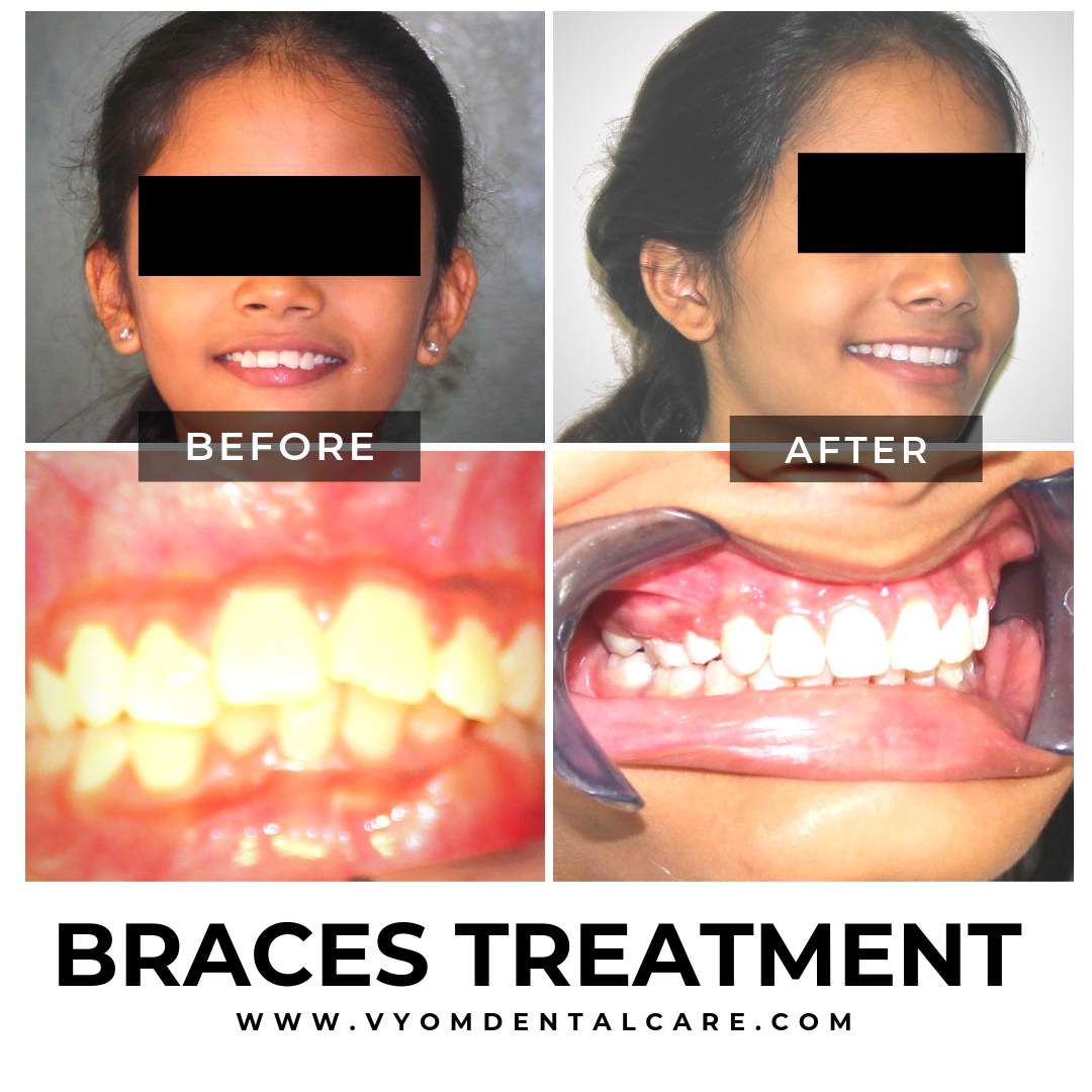 braces-treatment-case-study-ahmedabad