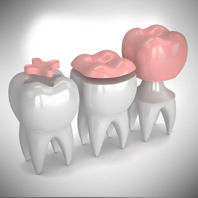 teeth-coloured-filling-treatment-ahmedabad