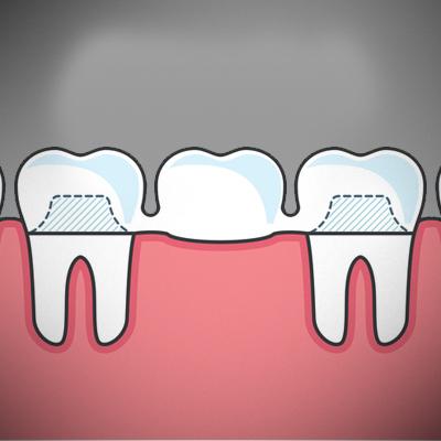 teeth-contouring-treatment-ahmedabad