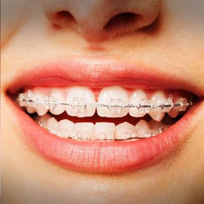 ceramic-braces-treatment-ahmedabad
