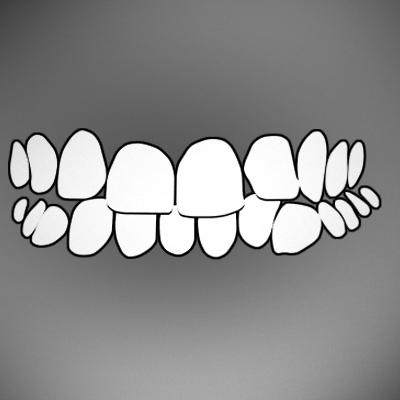 crooked-teeth-treatment-ahmedabad
