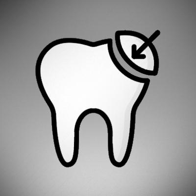 dental-bonding-treatment-ahmedabad