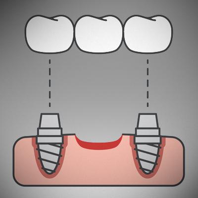 dental-bridge-treatment-ahmedabad