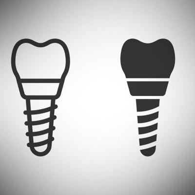 dental-implant-treatment-ahmedabad