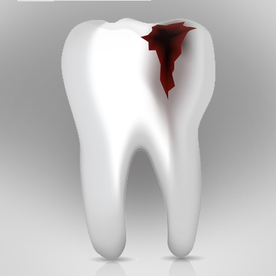 eroded-teeth-treatment-ahmedabad