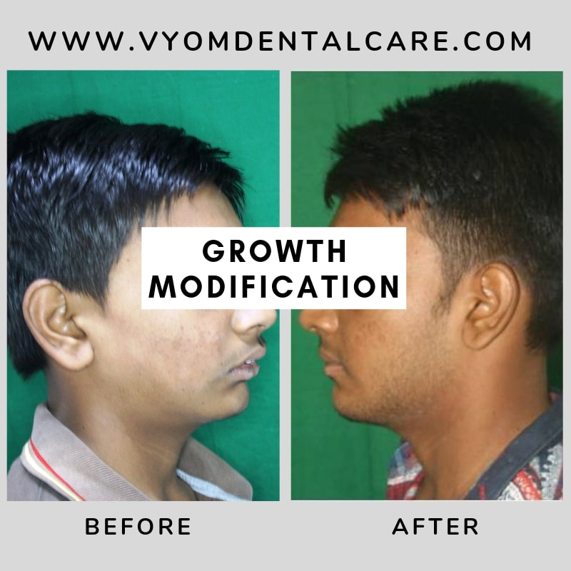 growth-modification-case-study-ahmedabad