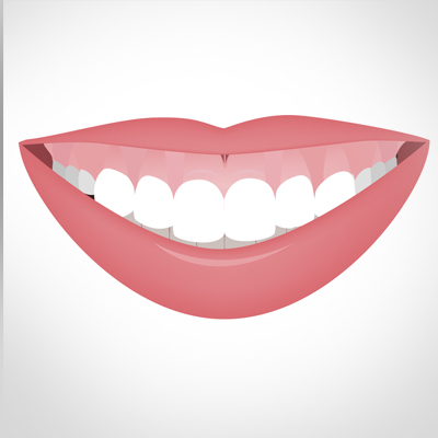 gummy-smile-treatment-ahmedabad