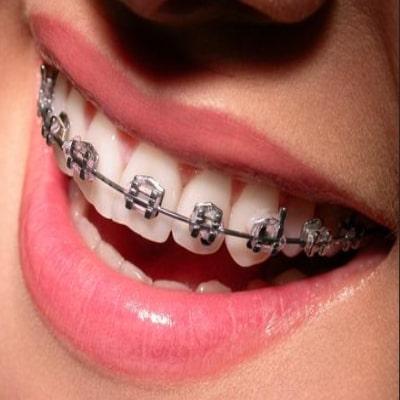 metal-braces-treatment-ahmedabad