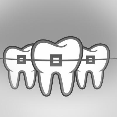 orthodontic-treatment-ahmedabad