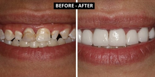 smile-makeover-ahmedabad-case-study