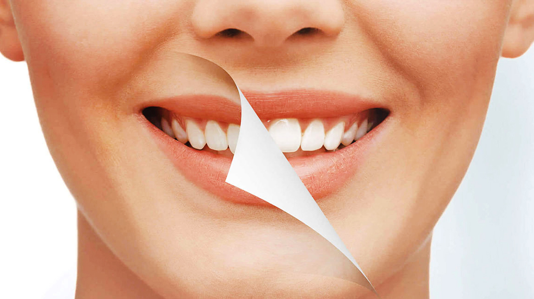 smile-makeover-treatment-ahmedabad