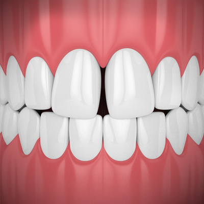 teeth-gap-treatment-ahmedabad