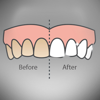 teeth-whitening-treatment-ahmedabad